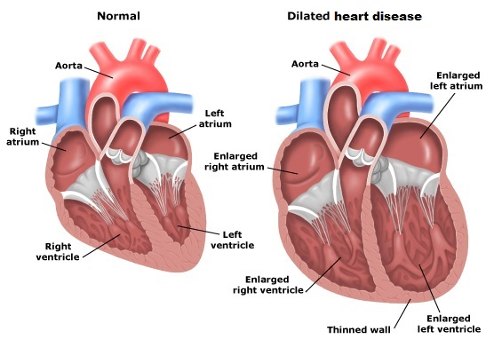 heart_ischemic-heart-disease_20142