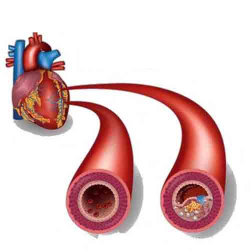 بالا بودن فشار خون و کلسترول چه تاثیری روی بخش های مختلف بدن دارد؟