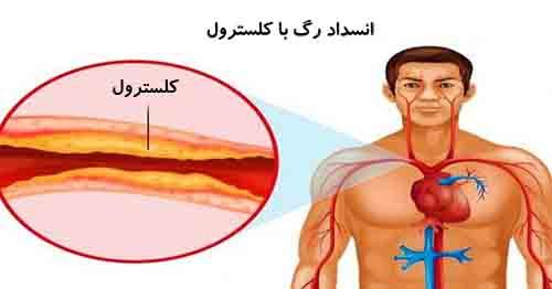 تاثیر کلسترول و فشار خون بر قلب و عروق