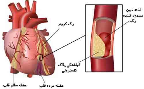 کلسترول خون بالا یعنی چه ؟