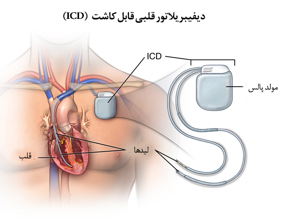 Anterior view of male figure with incision for ICD implant; SOURCE: 3D_normal_cns.mb, outline: cardiology_cardio-stent-place_procedure_1_line.ai; cardiology_heart_slide_template; A_cardio_20140127_p08774en_019; p08774; p08774en;