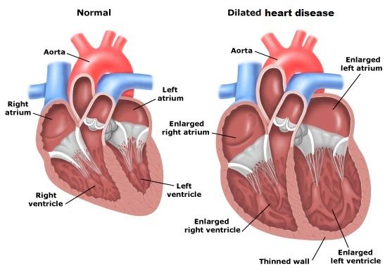 heart_ischemic-heart-disease_20142